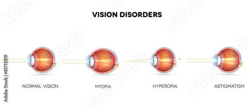 Eyesight disorders. Normal eye, Astigmatism, hyperopia and myopi - 81713819