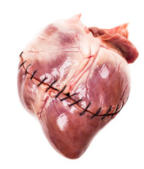 heart with suture close-up