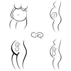 Schwangerschaft - silhouette set