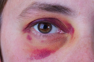 Human eye with a large bruise