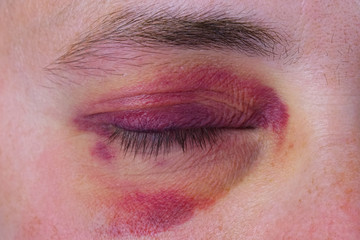 Human eye with a purple bruise