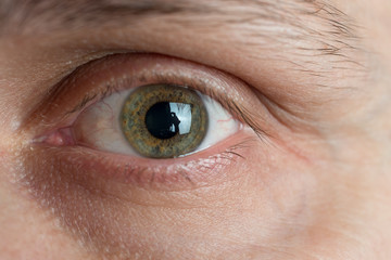 erkek gözü