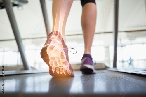 Highlighted foot bones of jogging woman - 81848803