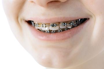 Mund mit Braces und Zahnspange