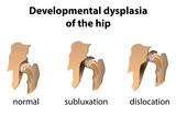 Dysplasia of the Hip