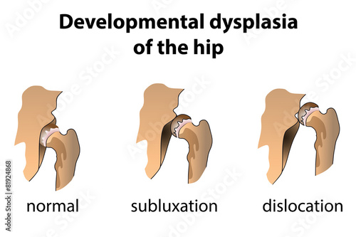 Dysplasia of the Hip - 81924868