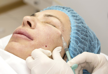 Cosmetic treatment with injection in a clinic