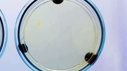 microbes colony growth in Petri dishes