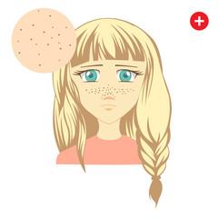Acne. Problem blackhead