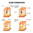 Acne formation - 82063421