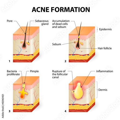 Naklejka Acne formation