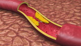 Clogged Artery Low Angle Digital Animation with platelets and cholesterol plaque. poster