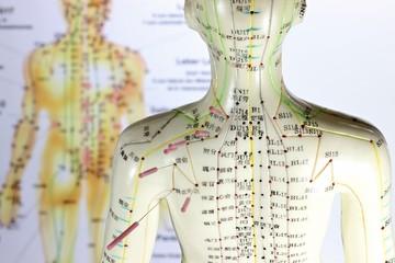 Akupunktur10