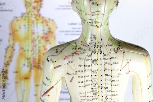 weibliches Akupunkturmodell mit Nadeln im Schulterbereich vor Lehrtafel - 82199459