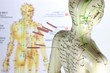Leinwandbild Motiv weibliches Akupunkturmodell mit Nadeln im Schulterbereich vor Lehrtafel