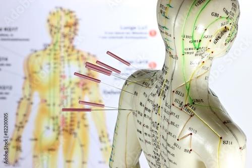 Leinwanddruck Bild weibliches Akupunkturmodell mit Nadeln im Schulterbereich vor Lehrtafel