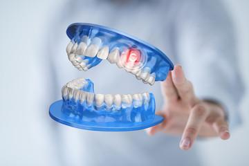 dentis