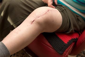 Seniorin mit frischer Narbe von Kniegelenk Operation