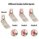 Grades of ankle sprains