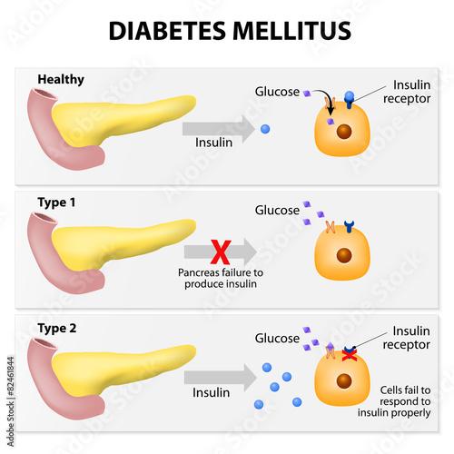Fototapeta Diabetes mellitus