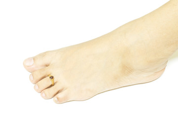 foot ring
