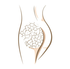 Concept of dry and cracked skin, vector sketch
