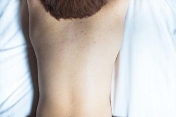 肌荒れの女性