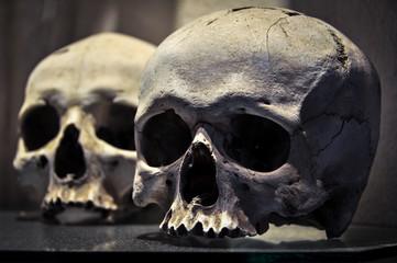 Two Real Human Skulls with No Mandibles