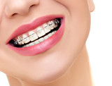 Closeup Braces on Teeth. Woman Smile with Orthodontic Braces.
