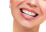 Fototapety Closeup Beautiful Female Smile with Ceramic and Braces on Teeth.