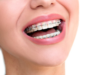 Teeth with Braces. Closeup Ceramic and Metal Braces.