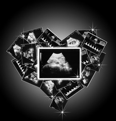 the child in the picture ultrasound