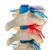 Постер, плакат: Spinal cord under pressure of bulging disc