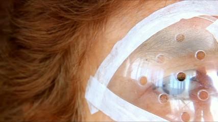 Mature female eye after surgery