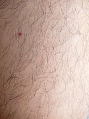 Mans hairy leg