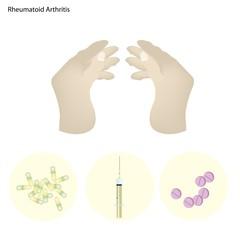 Rheumatoid Arthritis of Finger Joint with Disease Treatment