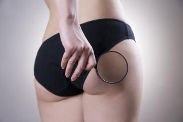 Fatty female buttocks