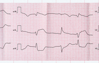 ECG with acute period macrofocal myocardial infarction