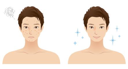 男性 顔 肌トラブル ニキビ