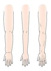 浮腫んだ手と腕 スリムな手と腕 骨ばった手と腕