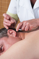 Woman acupuncturist prepares to tap needle into ears of man