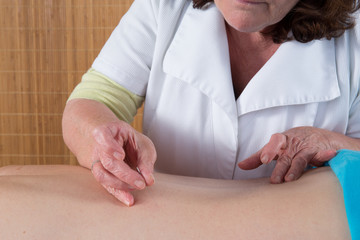Woman acupuncturist prepares to tap needle into patients skin