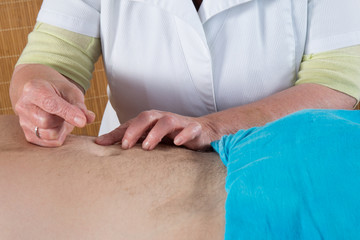 Close-up of woman's hands doing acupuncture on  a man