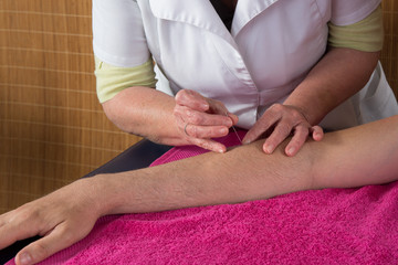 Treatment by acupuncture by a woman therapist