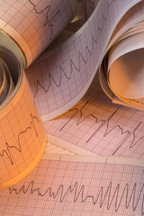 Electrocardiograph Traces - Cardiac Arrhythmia