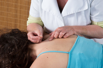 Woman receiving an acupuncture treatment
