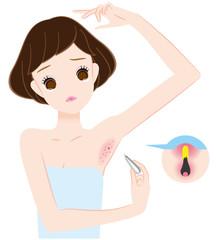 毛抜きで腋毛自己処理して炎症、化膿
