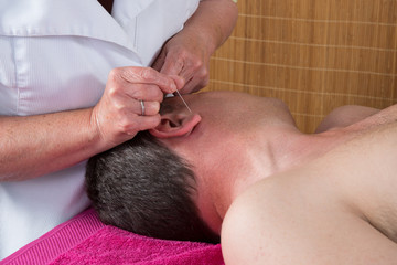 Acupuncturist prepares to tap needle on man's ear