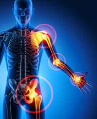 Schmerzsymptome an Gelenken 1