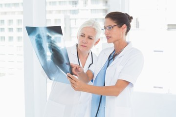 female doctors examining x-ray